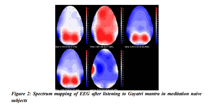 spectrum-mapping-eeg-after-listening-gaytri-mantra
