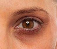 Before IT Cosmetics Bye Bye Undereye Concealer