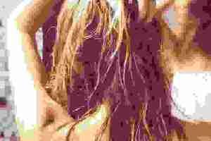 Έχω πιτυρίδα, τι να κάνω; Όσα συστήνει ο δερματολόγος για την αντιμετώπισή της - Shape.gr