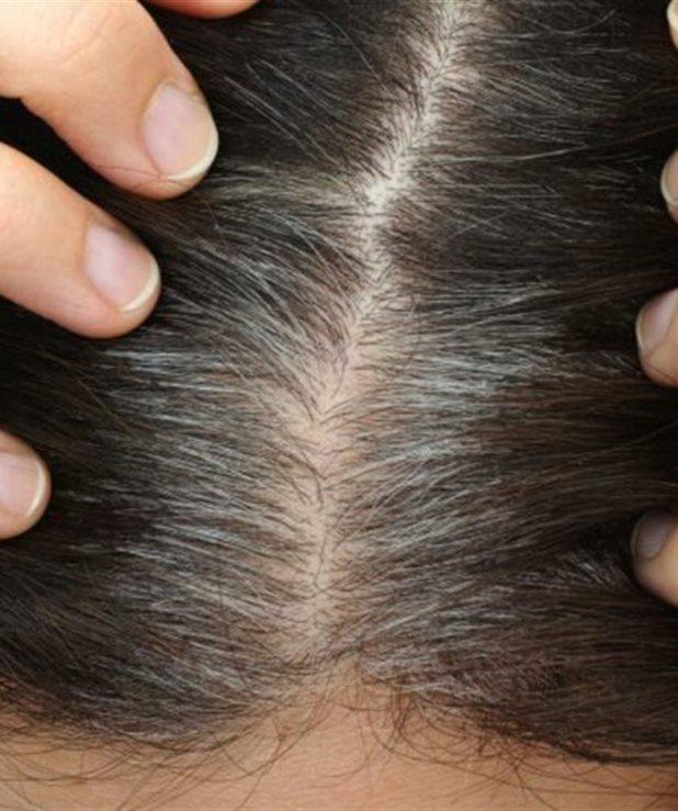 Πρόωρο γκριζάρισμα μαλλιών: 7 πιθανές αιτίες (pics)
