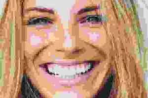 Γιατί πονάνε ή ματώνουν τα ούλα; Είναι ουλίτιδα, περιοδοντίτιδα ή απόστημα; Η οδοντίατρος απαντά - Shape.gr