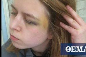 Εφιάλτης για 23χρονη Βρετανίδα από τον vegan φίλο της