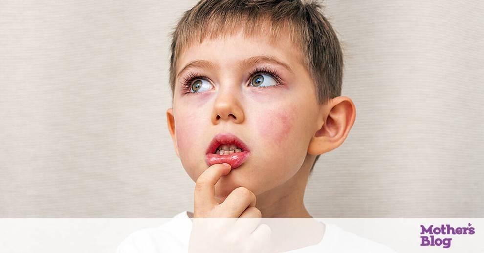 Tips για μαμάδες: Δαγκώσατε ή κάψατε τη γλώσσα σας; Να τι να κάνετε