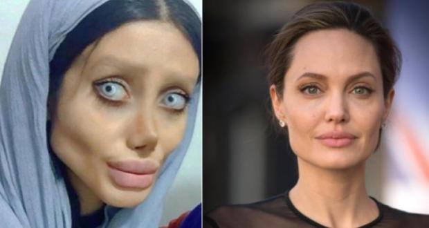 """""""Мъртвата булка"""": Тя пръсна камара пари и си направи над 50 операции за да прилича на Анделина Джоли (СНИМКИ)"""
