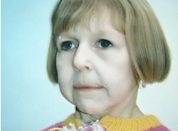Дете се роди с лице на старица