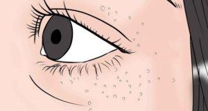 3 природни начина да премахнете милиумите по кожата си- малките бели точки които колкото и да ги стискате не се махат