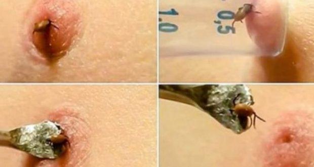 Ето най-ефективния начин за премахване на кърлеж безопасно!