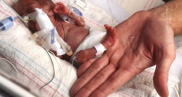 Помните ли миниатюрната Емилия която се роди едва 226 грама
