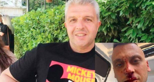 Журналистът Антон Стефанов: Сценична боя е по лицето на Флоров