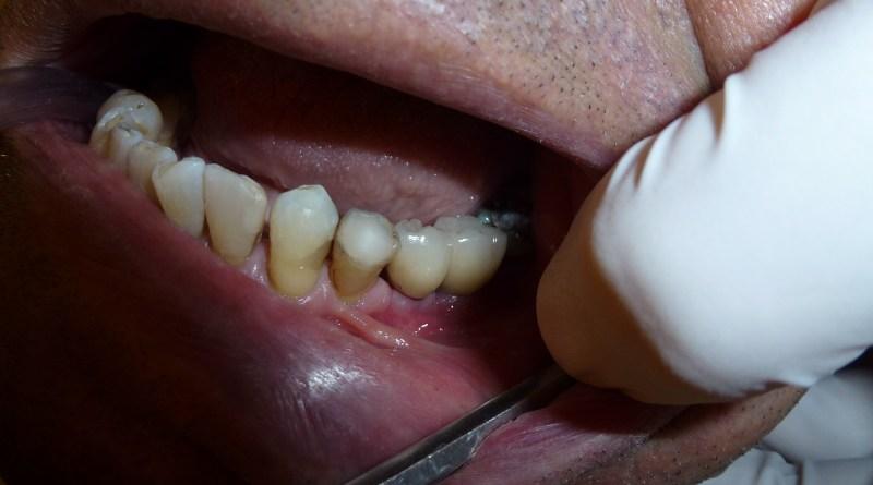Tandlægen kan opspore uopdaget diabetes
