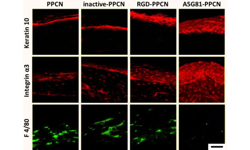 La benda rigenerativa accelera la guarigione nelle ferite diabetiche