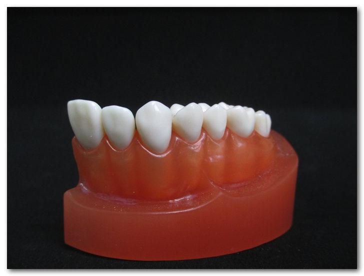 3Dプリンタを使って歯列模型の歯と歯グキの色を入れ替えてみたらヤヴァい事になった