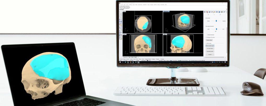 Medical CAD Software Rhino3D Medical