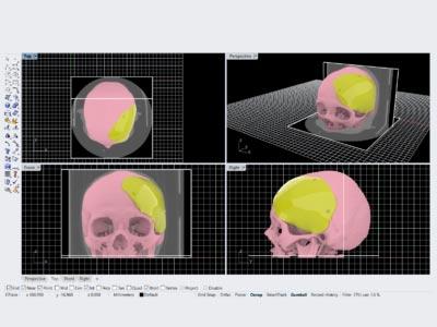 Medizinisches Freiform Design