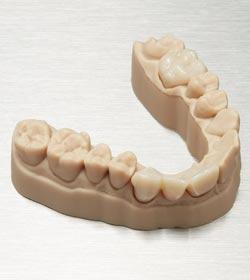 Temporary CB Material 3D-Druck