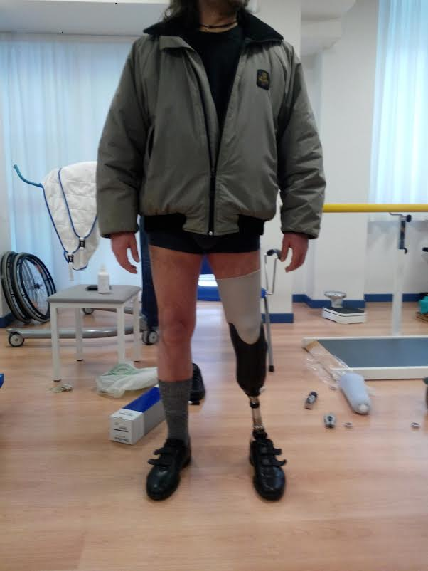 Biomedical Engineer Uses a DeltaWASP 2040 3D Printer to Create Multiple Advanced Prosthetic