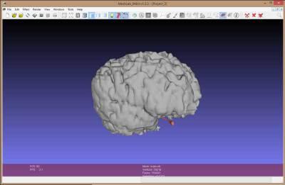 meshlab brain scan file