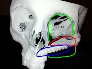 This 3D render of Stephenson's skull shows the removed skull in Green, the shoulder blade used to re-build his cheek bone in Red and the metal sockets for false teeth in Blue.