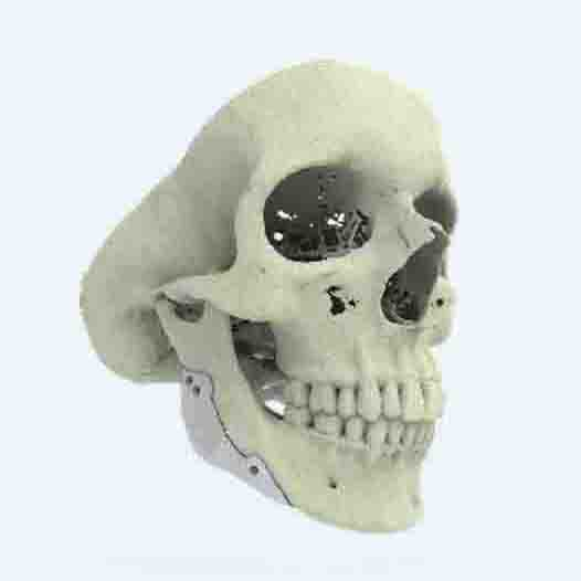 3D-printed-ct-bone-implantedit