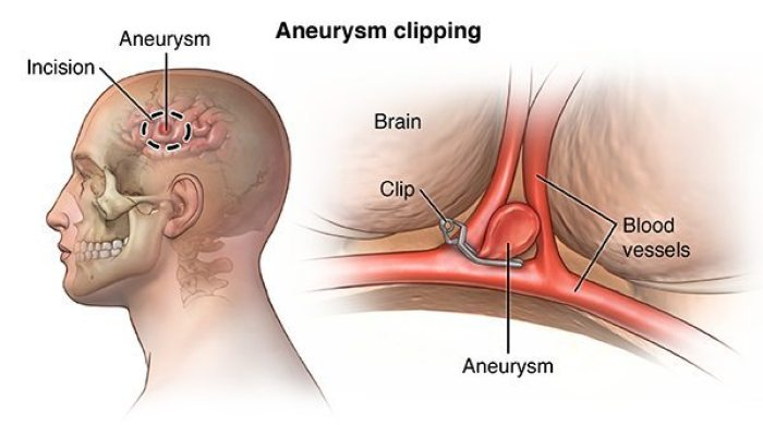 Clipping aneurysms
