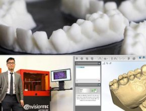 3d printed dental