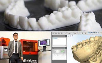 3d printed dental