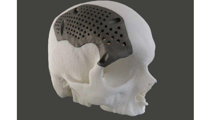 direct metal laser sintering dmls skull