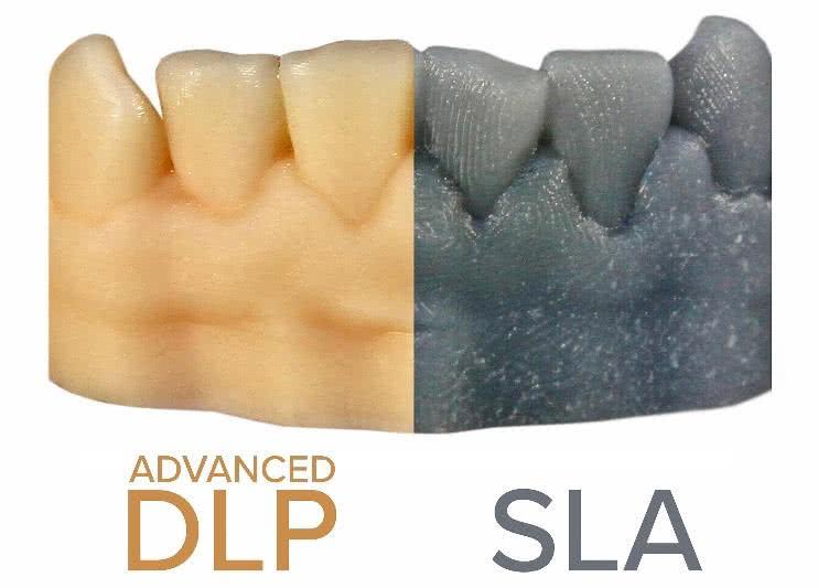 sla vs dlp print quality comparison