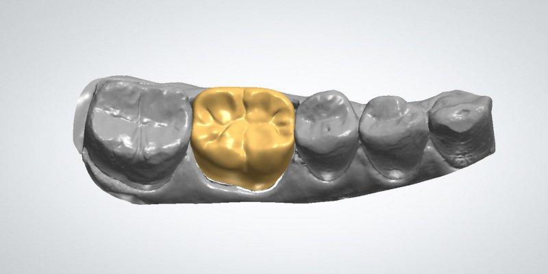 3d printed dental medical implants
