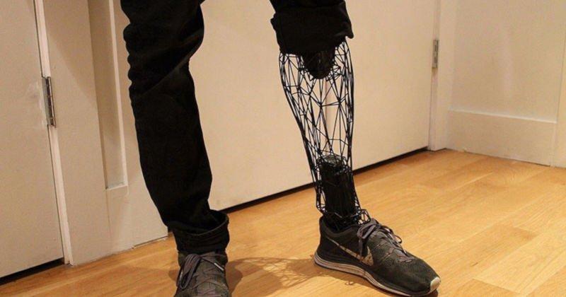 william root leg prosthetic