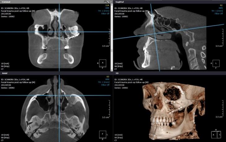 3d digital imaging medicale