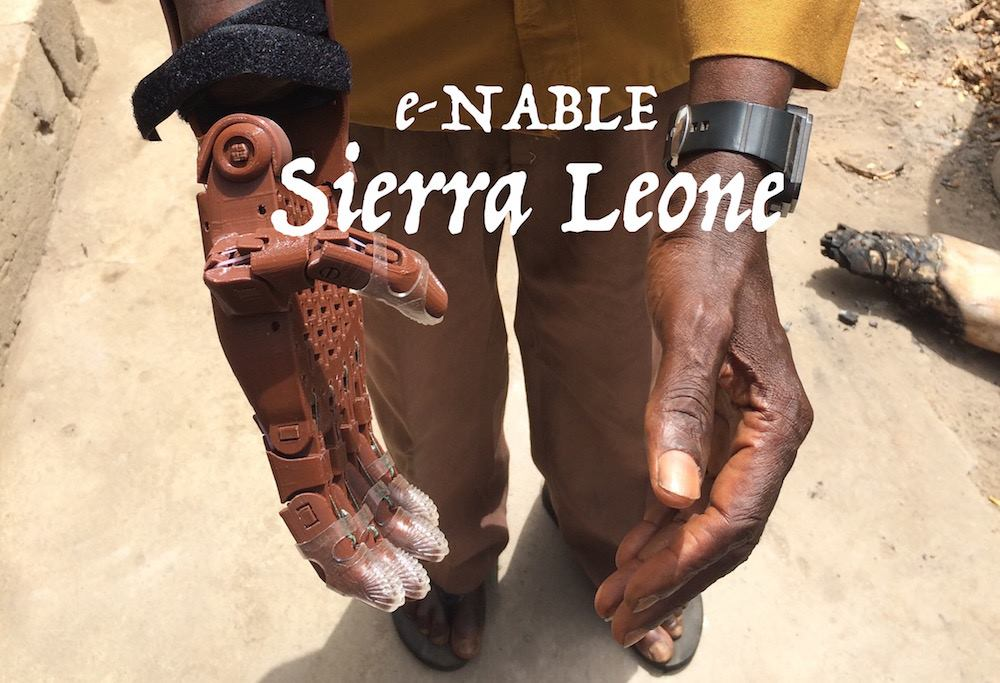 3D printed prosthetic e-NABLE hands in Sierra Leone, a large humanitarian aid organization.