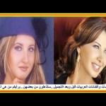 النجمات والفنانات العربيات قبل وبعد التجميل جديد ٢٠١٦…ستذهلون من بعضهن…برأيكم من هى أجملهن ؟