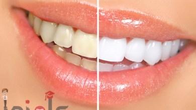 صورة الطريقة الطبيعية والبسيطة لتبييض الأسنان من غير اللذهاب الى الدكتور