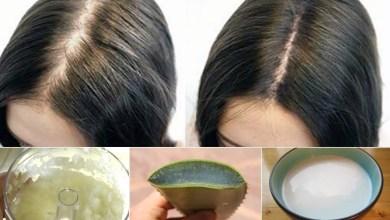 صورة علاج تساقط الشعر بالطرق الطبيعية .. تعرف عليها