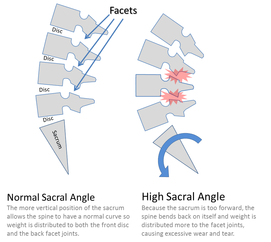 hight resolution of low back facet joints and stem cells