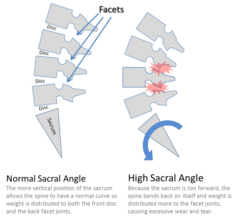 small resolution of low back facet joints and stem cells