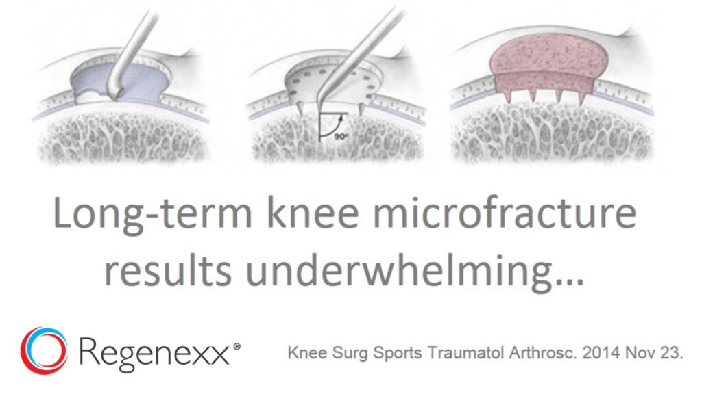 Knee Microfracture Results a Bust in Long-term Study