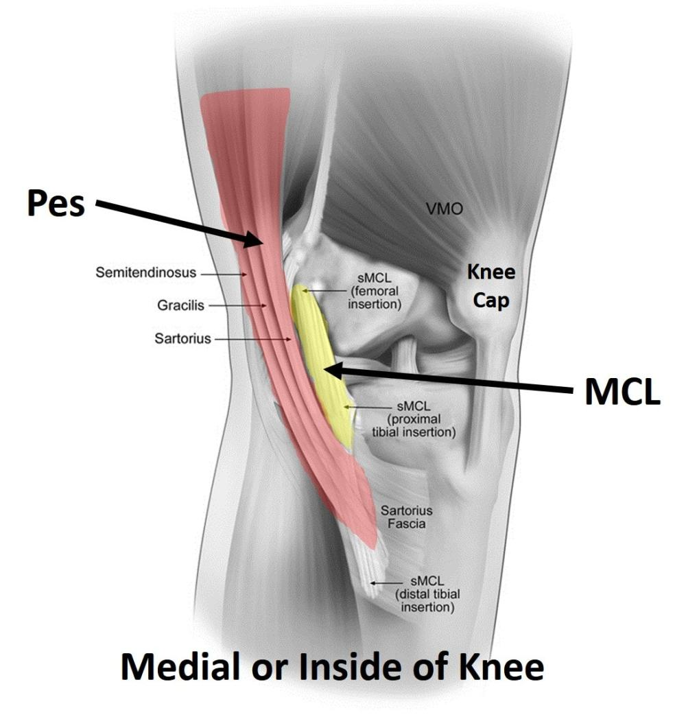 medium resolution of the researchers compared ultrasound guided prp injection inside the joint ia or intra articular alone with ia the pes anserine and likely some of the