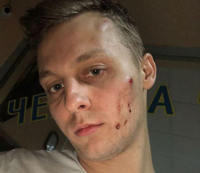 У київському ресторані побили сина нардепа Шуфрича