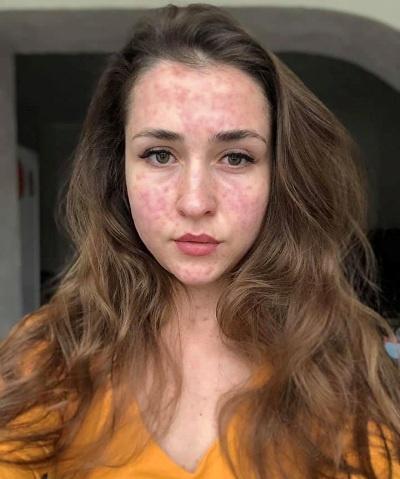 Фото жінки, хворої на кір