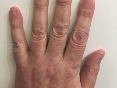 фото руки