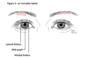 Botox Injection to the Central Eyelid and Brow Areas Is a