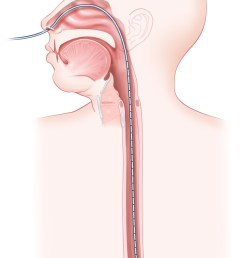 esophageal manometry involves passing a probe with pressure sensors through the nose and down the esophagus to the level of the lower esophageal sphincter  [ 840 x 1353 Pixel ]