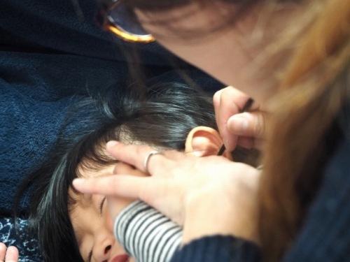 栓塞 子供 耳垢