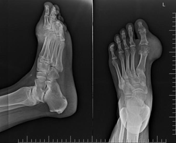 Рентген при болях в суставе