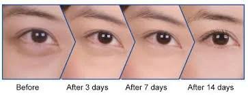 Under Eye Lightening Treatment in Kochi | ID: 13793556488