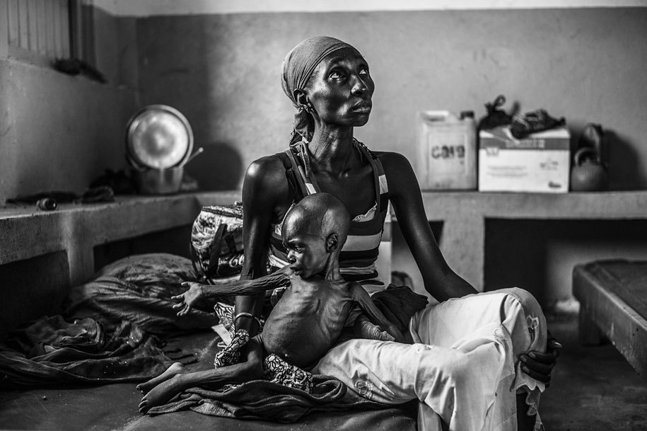 letswakeupworld:Guidi Oumarou, nineteen, sits at Gore Hospital in Chad, where her two-year-old son, Mama Sale, is being treated for severe malnutrition. (Photo Credit: Corentin Fohlen)