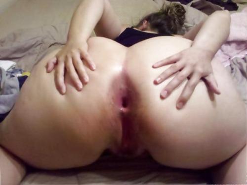 morph anal gape