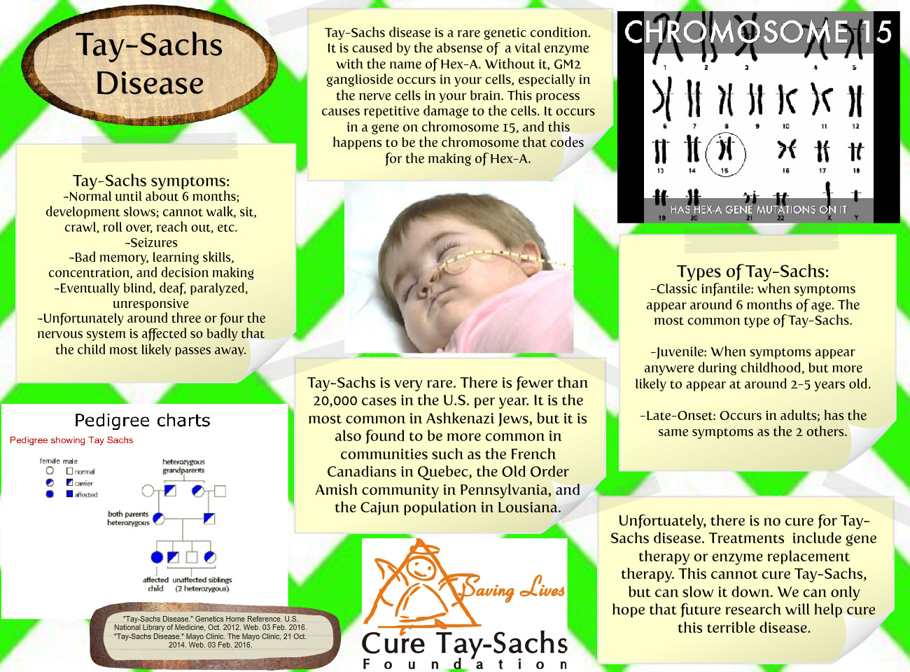 Tay Sachs Genetic Disease Condition Disease En Én én